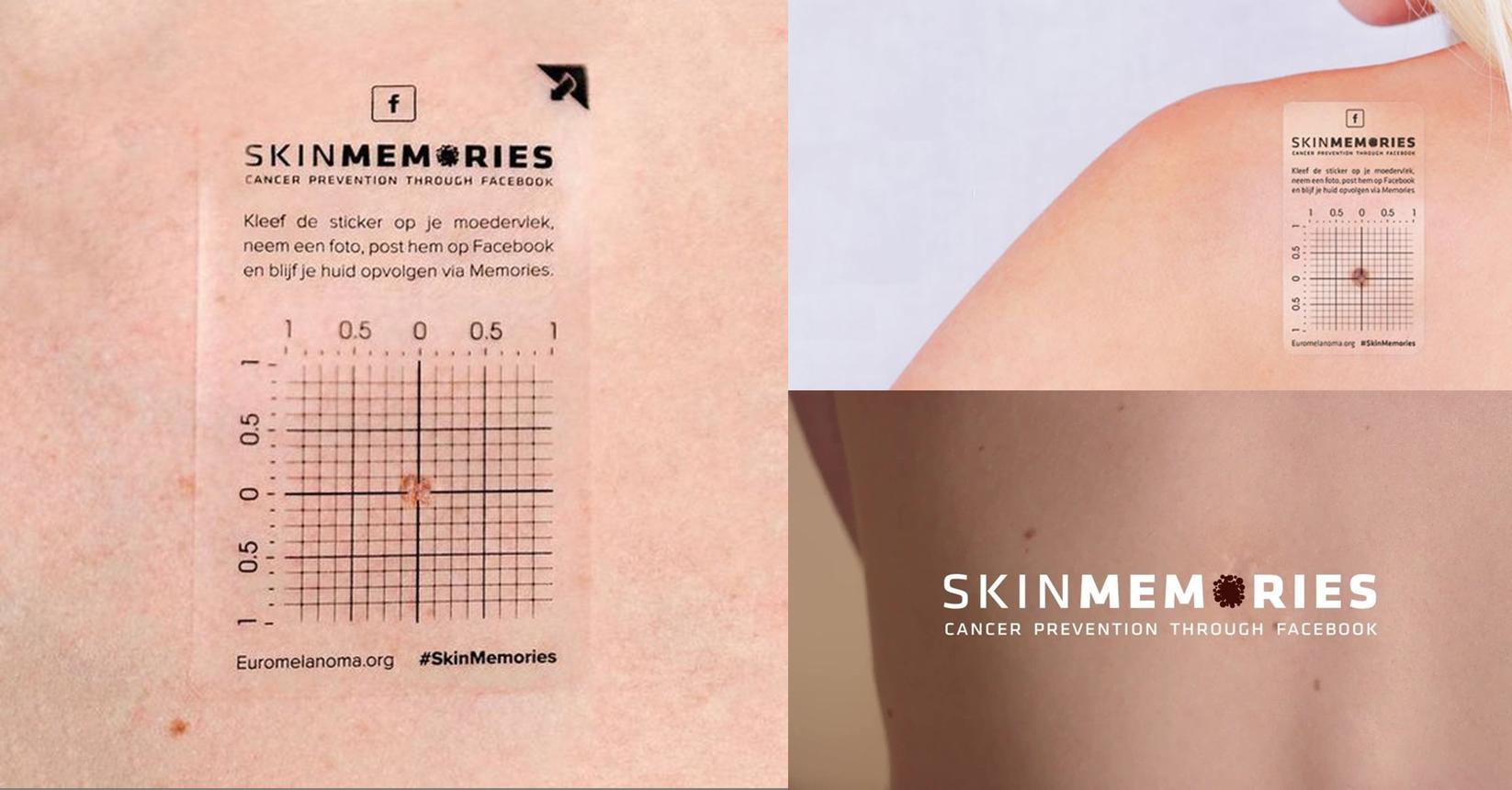 Skin Memories เปลี่ยน Facebook Memories เป็นเครื่องมือตรวจเช็คมะเร็งผิวหนัง
