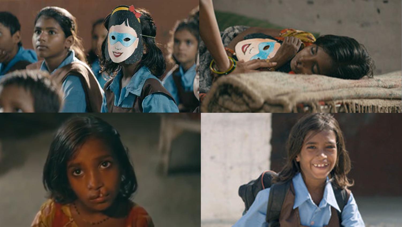 เรื่องราวของ 'มุนมุน' เด็กหญิงหน้ากากรอยยิ้ม กับชีวิตที่เปลี่ยนไปด้วยลิปบาล์ม