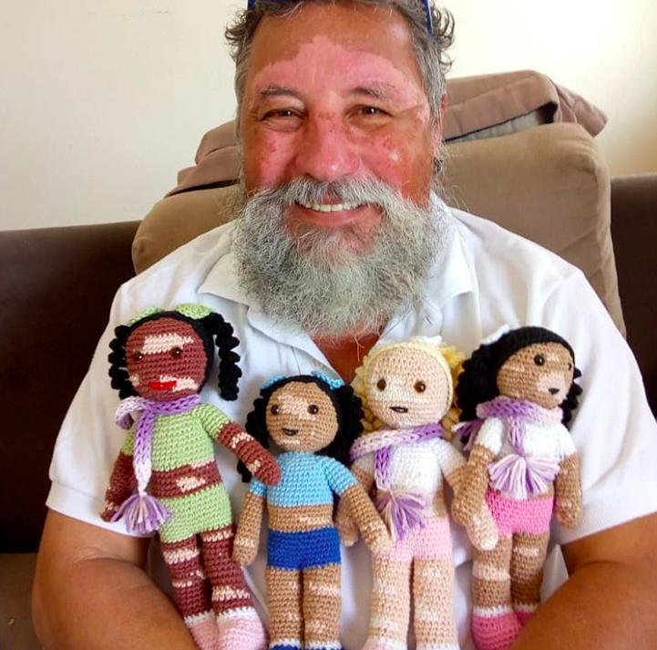 คุณตาถักตุ๊กตาหน้าด่างแสนน่ารัก สร้างตระหนักรูปกายแค่ภายนอก หาใช่รอยด่างที่จิตใจ
